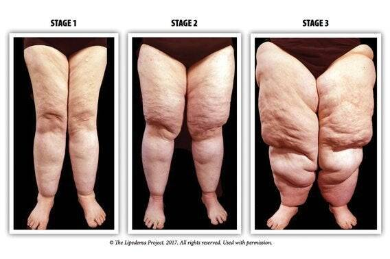 Lipoedema, a common condition which causes excess fat on the lower body : loseit